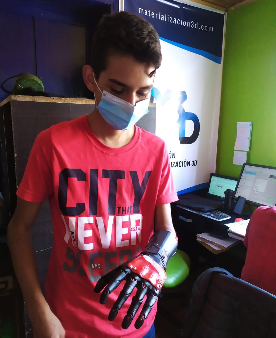 Niño recibe prótesis gratis de Materialización 3D