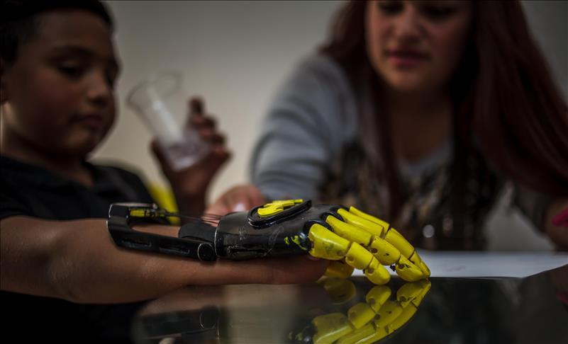 Las prótesis impresas en 3D que convierten a los niños en superhéroes